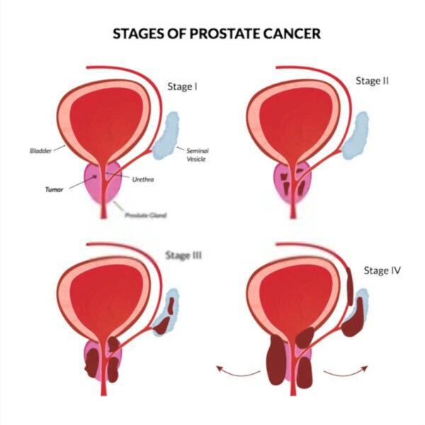 مراحل-علاج-سرطان-البرروستاتا