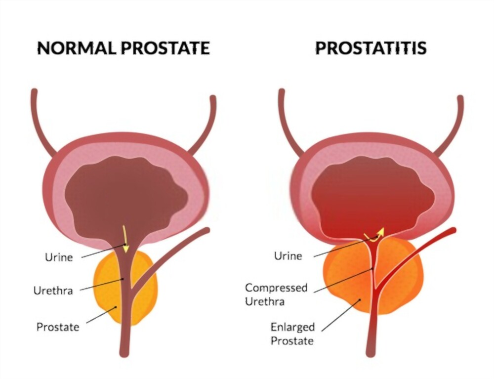 علاج-اورام-البروستاتا