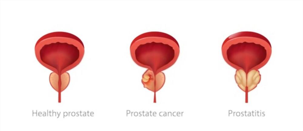 علاج-سرطان-البروستاتا