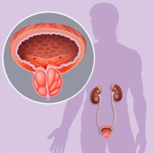 تشخيص-التهاب-البروستاتا