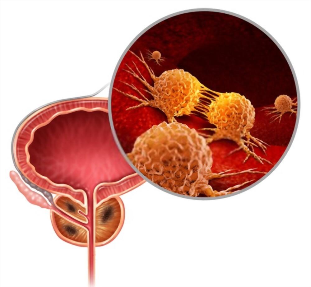 مراحل-سرطان-البروستاتا-2021