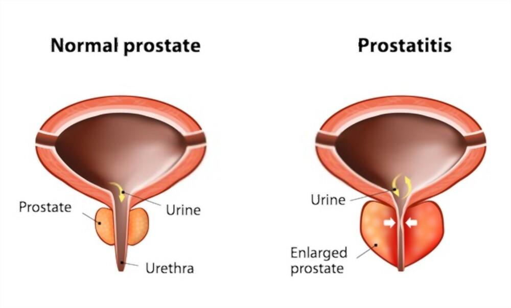 الفارابي-2021علاج-سرطان-البروستاتا-في-المراحل-المتقدمة