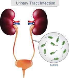 علاج سرطان البروستاتا بالهرمونات