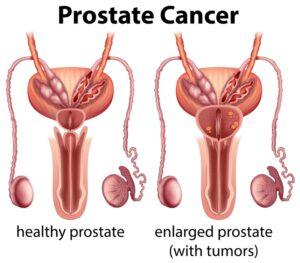 علاج سرطان البروستاتا المتقدم بالاعشاب